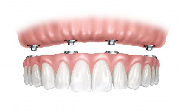 Implantologia 2 3